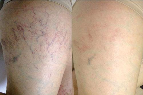 Laser Spider Vein Removel services in Melbourne FL by Tatts No Good